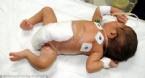 6 Bacaklı Bebek Ameliyat Edildi