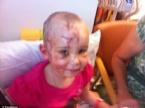 PİTBULL - Pitbull Küçük Kızı Bu Hale Getirdi.. Annesi İntikamını Fena Aldı