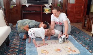 Kafadan Yapışık Siyam İkizleri 1 Yaşında