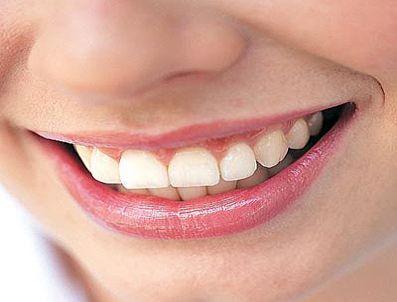 BEYAZ ŞARAP - Bu besinler diş lekelerine neden oluyor