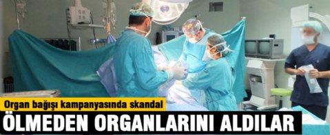Ölmeden organlarını aldılar