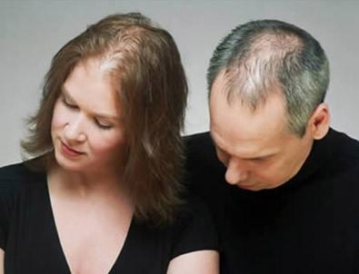 Stres saç döker mi?