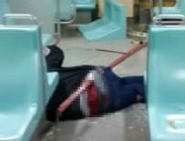 Metroda kalçasına demir saplanan adam o anları anlattı