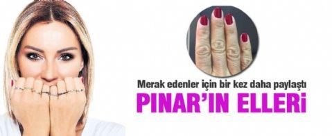 Pınar Altuğ ellerini bir kez daha paylaştı