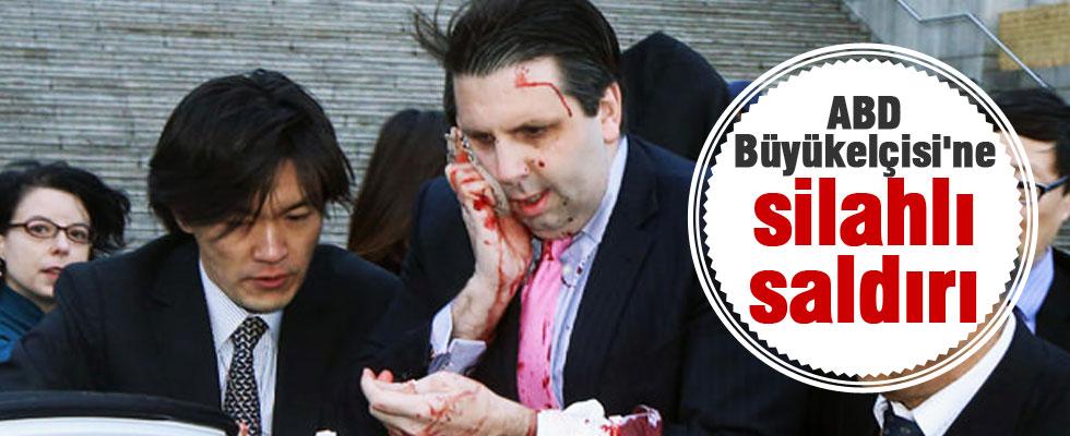 ABD Büyükelçisi'ne silahlı saldırı