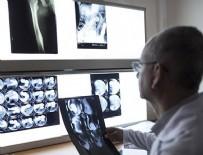 MARMARA ÜNIVERSITESI - 'Sessiz hastalık' hastanede daha uzun yatırıyor