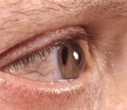 ERKEN TEŞHİS - Gözlerini ovuşturanlar dikkat
