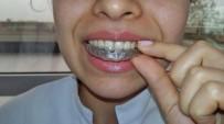İSTANBUL AYDIN ÜNİVERSİTESİ - Estetiği Bozmadan Sağlıklı Gülüşler Artık Daha Kolay