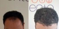 SAÇ BOYASı - Saç Ekimi Operasyonlarında Şapka Uyarısı