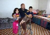PROTEZ BACAK - Halep'te Bombardımanda Yaralanan Suriyelinin Ayağı 2 Kere Kesildi