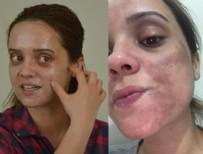 GÜZELLİK UZMANI - Lekelerden kurtulmak isterken genç kızın yüzü yandı!