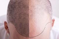 KELLIK - Organik saç ekiminin de taklidi çıktı