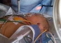 Ambulans Helikopter 2 Günlük Bebek İçin Havalandı