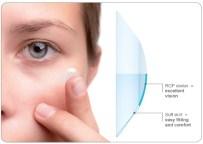 Keratokonus Tedavisinde Kontakt Lens Kullanımı