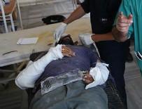 DAEŞ - Cerablus'tan kaçarken tıbbi cihazları da almışlar