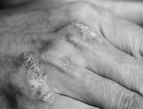 SEDEF HASTALIĞI - Stres deriyi hasta ediyor