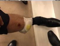 Bacağı ısırıldı, DNA testi istedi