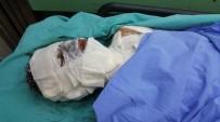 MESLEK LİSESİ - Sobaya Dökülen Tiner Parladı, Lise Öğrencisi Hastanelik Oldu