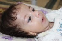 YUNUS EMRE - Kulakları Olmayan Bebek Ameliyat Olmayı Bekliyor