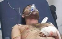 YANGINA MÜDAHALE - Samsun'da Tüp Patladı Açıklaması 1 Yaralı