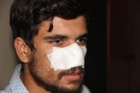 ŞANLIURFA - Kavga Ettiği Kuzeni Tarafından Burnu Isırılarak Koparıldı