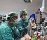 BEYİN TÜMÖRÜ - Eğitim Ve Araştırma Hastanesi Adıyaman'da Bir İlki Gerçekleştirdi