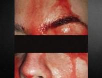 CANADA - Doktorlar bile dondu kaldı...Kan terledi!