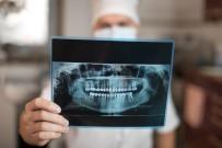 RADYASYON - Diş Röntgeninde Radyasyon Riskine Karşı Önlem Şart