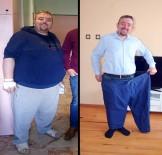MİDE AMELİYATI - 1 yılda 96 kilo verdi