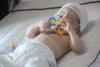 ESTETIK - 11 Aylık Bebeğe Kafa Şekil Bozukluğu Ameliyatı