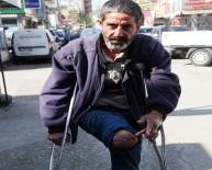 YÜKSEK GERİLİM - Engellinin Protez Bacağını Çaldılar