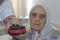 DEVLET HASTANESİ - Safra Kesesinden Çıkan Taşlar Doktorları Bile Şaşkına Çevirdi