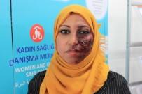KIRMIZI HALI - Ülkelerindeki Acıları Yüzlerine Yansıttılar