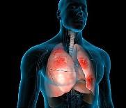 BAĞIŞIKLIK SİSTEMİ - Zatürre Hala Ölümcül Bir Hastalık