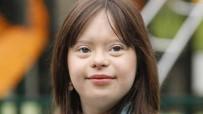 HAVA DURUMU - Down Sendromlu Genç Kız Hava Durumunu Sunacak