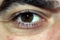 HIPERMETROP - Körlükle Sonlanabilecek Sinsi Hastalık Açıklaması Glokom