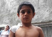 FAST FOOD - Sıcak Suyla Saldırılan Minik Çocuk Konuştu