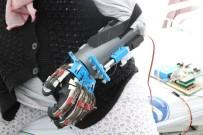 PATENT - Bu Robot Elinde Felç Olan Hastalara Umut Olacak