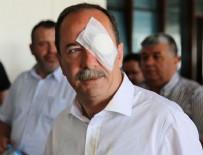 Belediye başkanına yumruklu saldırı