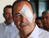 Edirne Belediye Başkanı'na saldırıda flaş gelişme
