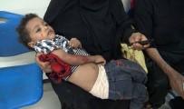 HAVAN MERMİSİ - Yemen'de Çatışma Açıklaması 6 Ölü, 20 Yaralı