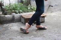 GENÇ KIZ - Ayak Parmakları Üzerinde Yürüyen Genç Kız Tedavi Edilmek İstiyor