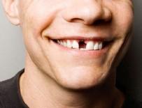 DIŞ HEKIMI - Diş eksikliği olanlar dikkat!