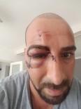 BELÇIKA - Belçika'da Türk vatandaşına ırkçı saldırı