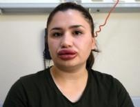 GÜZELLİK UZMANI - Sağlık Bakanlığından 'sahte estetik' açıklaması