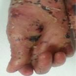 DERMATOLOJİ - Bu hastalığın tedavisi yok