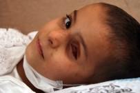 TEDAVİ SÜRECİ - Esad Güçlerinin Attığı Bombanın Kör Ettiği Minik Yasmin'in Yardım Çığlığı