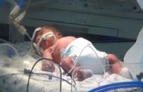 AMBULANS HELİKOPTER - Annesi Öldürülen Bebeğin Hayati Aktivitelerinde İyileşme