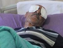 DİYARBAKIR - Kamyonet kasasında tartıştığı uyuşturucu bağımlısı, parmakla 2 gözünü oydu