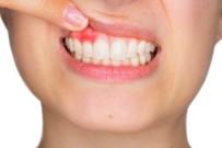 İSTANBUL AYDIN ÜNİVERSİTESİ - Diş Etindeki Renklenmeler Ne Anlama Geliyor ?